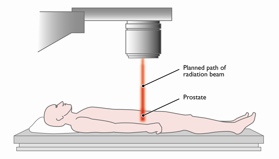 prostate external radiation therapy